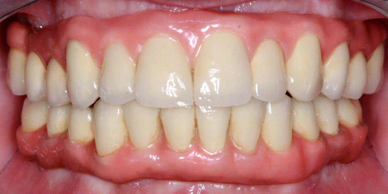 Teljesen fogatlan páciens rehabilitációja BLX implantátumok azonnali terhelésével,  digitális munkamenettel