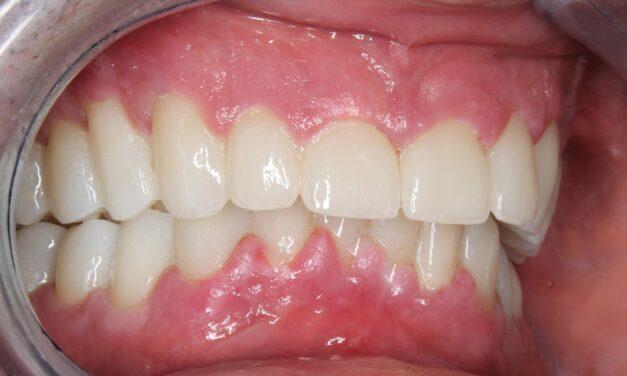 SARS-CoV-2 fertőzésen korábban bizonyítottan átesett páciens teljes fogászati rehabilitációja az esetleges keresztfertőzés rizikójának minimalizálására, digitális munkamenettel