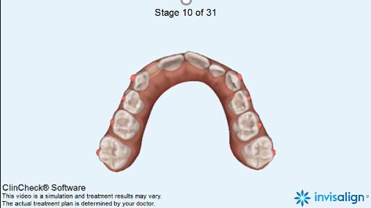 Az Invisalign First kivehető készülékek interceptív orthodoncia beavatkozások során történő alkalmazásának előnyei