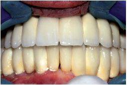 Teljesen fogatlan alsó és felső állcsont egyidejű ellátása 8-8 ANKYLOS® implantátumon rögzített hídpótlással – azonnali terhelés mellett