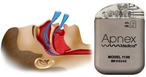 Új pacemaker az apnoé és a horkolás ellen