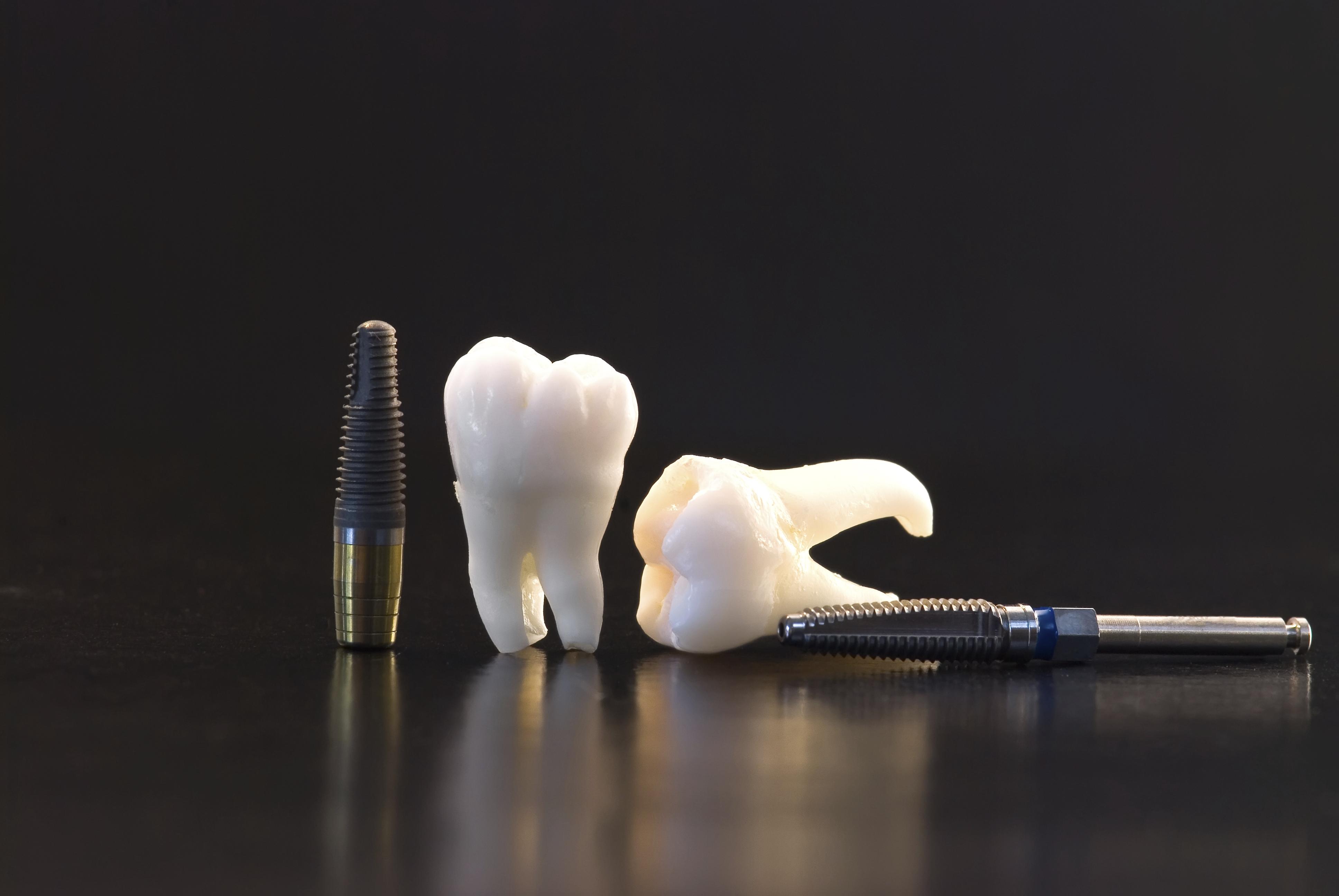 Fogászati implantációs rendszerek