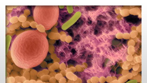 Hasnyálmirigyrákot jelezhet egy szájüregi baktérium