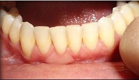 Új technológia a gingivitis ellen