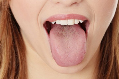 Mi az orális allergia szindróma?
