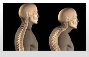 Fogorvosok segíthetnek az osteoporosis korai diagnózisában