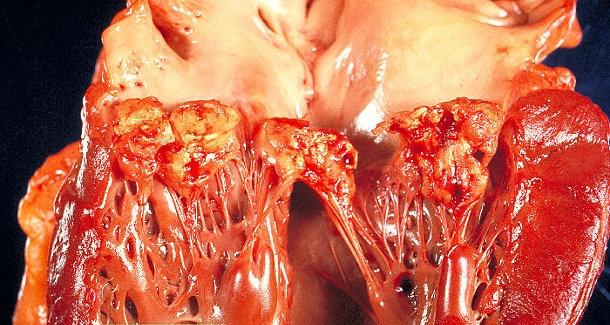Endocarditis-kockázat: sok német fogorvos nem törődik az irányelvekkel