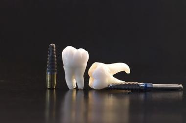 """""""Az implantológiai piac 2012"""""""