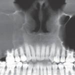 1. ábra Malignus daganatot utánzó, jóindulatú szájüregi tumorok fiatal páciensek esetében