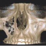 3. ábra Malignus daganatot utánzó, jóindulatú szájüregi tumorok fiatal páciensek esetében