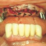 4. ábra Frontmetszők eltávolítása, azonnali implantáció, csontpótlás, membrán