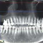 4. ábra Malignus daganatot utánzó, jóindulatú szájüregi tumorok fiatal páciensek esetében