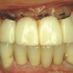 5. a ábra Ideiglenes híd behelyezése húzás és azonnali implantáció után