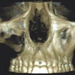 6. ábra Malignus daganatot utánzó, jóindulatú szájüregi tumorok fiatal páciensek esetében