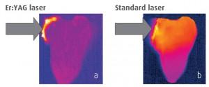 A TouchWhiteTM fehérítéssel csak a zselé melegszik fel, mialatt a standard lézeres fehérítés során az egész fog felmelegszik.