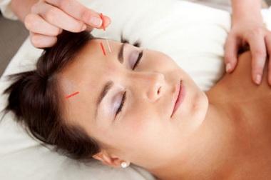 Akupunktúrával a xerostomia ellen