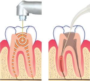 Az Er YAG-lézer először kitisztítja a csatornákat és gyökércsatornákat. Ezután az Nd YAG-lézer mélyen fertőtleníti a dentinfalakat.
