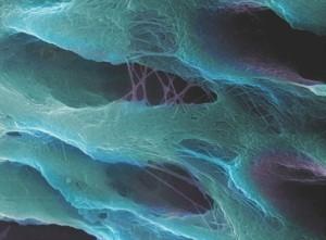 Az intertubuláris dentin védett kollagénrostjai a dentintubulusok nyílásánál.