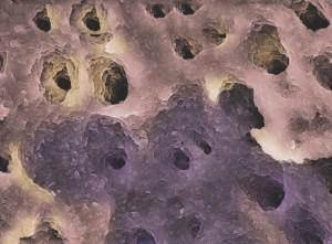 Endodontiai lézerbeavatkozás után a dentintubulusok csíramentesek, és teljesen megnyílnak.