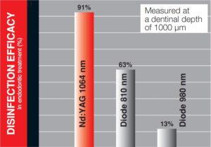 Fertőtlenítési hatékonyság Nd YAG-lézerek vs. egyéb lézerek