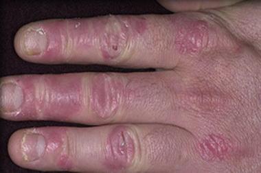 Kapcsolat lehet az ínybetegség és a pikkelysömör között