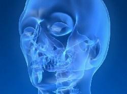 Növeli a beültetések sikerarányát az új fogprotézis-bevonat