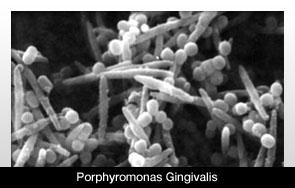 A gingivitis baktériuma manipulálja az immunrendszert