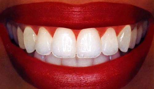 Molekuláris szinten befolyásolja a fogak állapotát a fehérítés