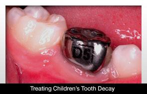 Új fogszuvasodás elleni módszer gyermekek részére