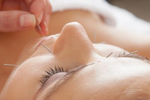 Akupunktúra a fogorvoslásban
