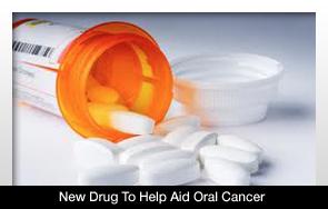 Új gyógyszert fedeztek fel a szájrák kezelésére