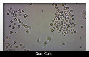 Fogat növesztettek a gingiva epithelsejtjeinek felhasználásával