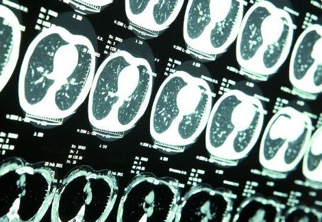 Csak a jóindulatú agydaganatok kialakulásának kockázatát növelik a fogorvosi röntgenek
