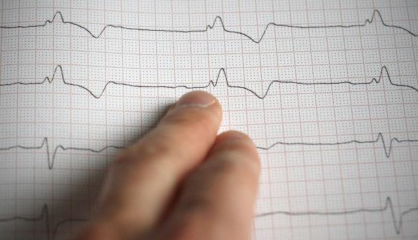 Nagy hatással van az orális egészségi állapot a szívbetegségre