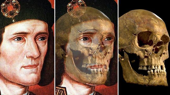 III. Richárd ideges természetű volt, csikorgatta a fogait