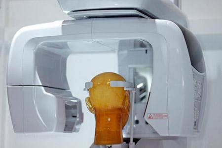 A fogászati röntgenek növelhetik a koponyán belüli tumor kialakulásának esélyét