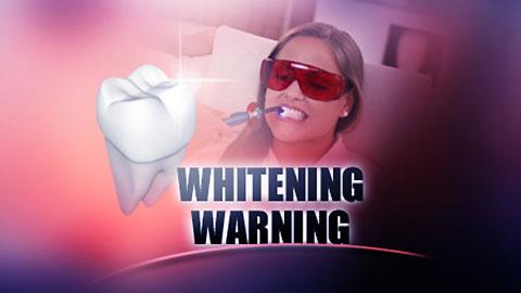 Négy betegből egy nem fogorvosnál fehéríttetné a fogát