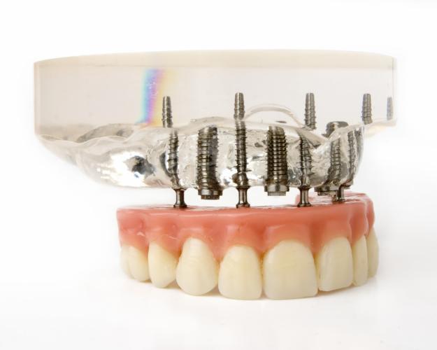 Egyre sikeresebbek az implantációk