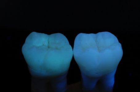 Fluoreszcens képalkotás használata fluorosis mennyiségi meghatározására