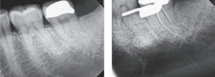 Gyökérkezelt fogak felépítése adhezív technikával