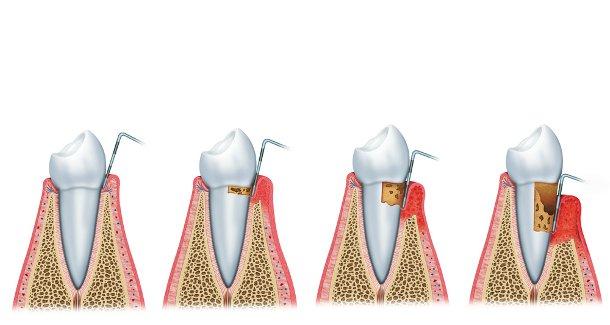 A parodontitis-ért felelős gén szabályozza a glükóz- és a zsírsavmetabolizmus kulcs-génjeit is