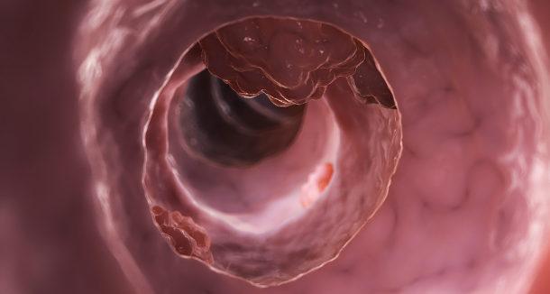 A közönséges szájüregi baktériumoknak szerepük lehet a vastagbélrákban