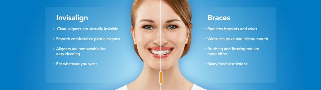 invialign-vs-braces