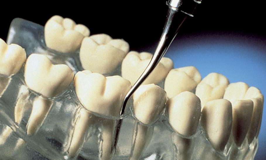 Szemléletváltás a parodontológiában