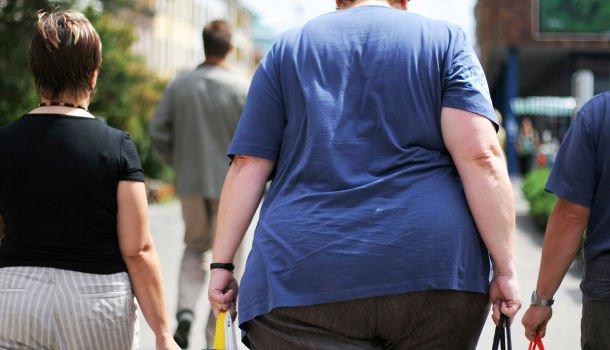 Az elhízás befolyásolhatja a parodontális terápia sikerességét