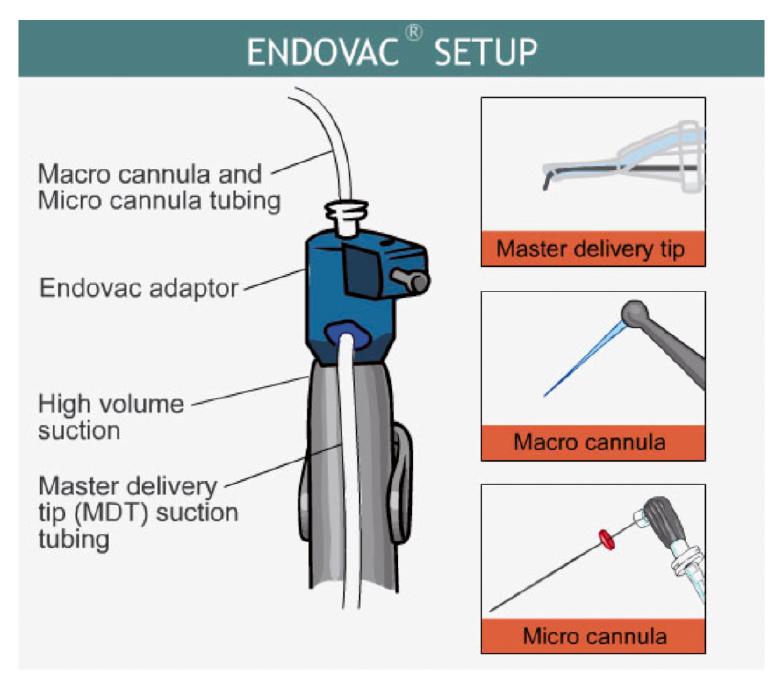 2. ábra: Az EndoVac szerkezete.