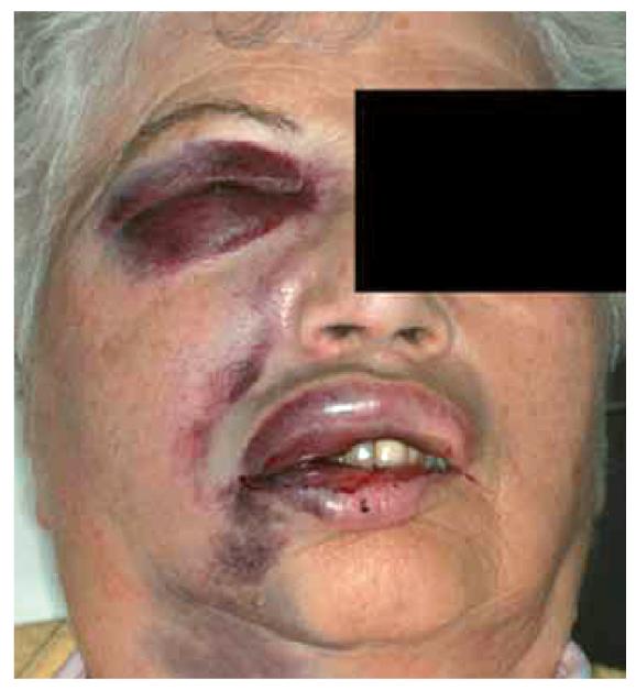 3. ábra: Öblítési baleset nagy kiterjedésű traumával.
