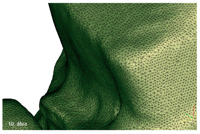 10. ábra: Lecsiszolt fog 3D-s szkennelt adatállománya STL-formátumban.