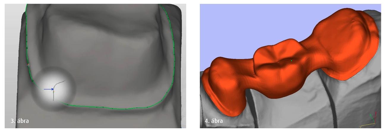 3. ábra: A pótlás széleinek záródását tervező programfunkció. 4. ábra: CAD-rendszerrel tervezett hídváz számítógépes modellje.
