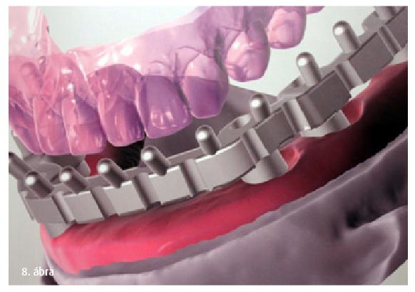 8. ábra: Implantátumokra  illeszkedő fogmű váza.